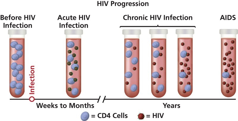 HIV AIDS satages